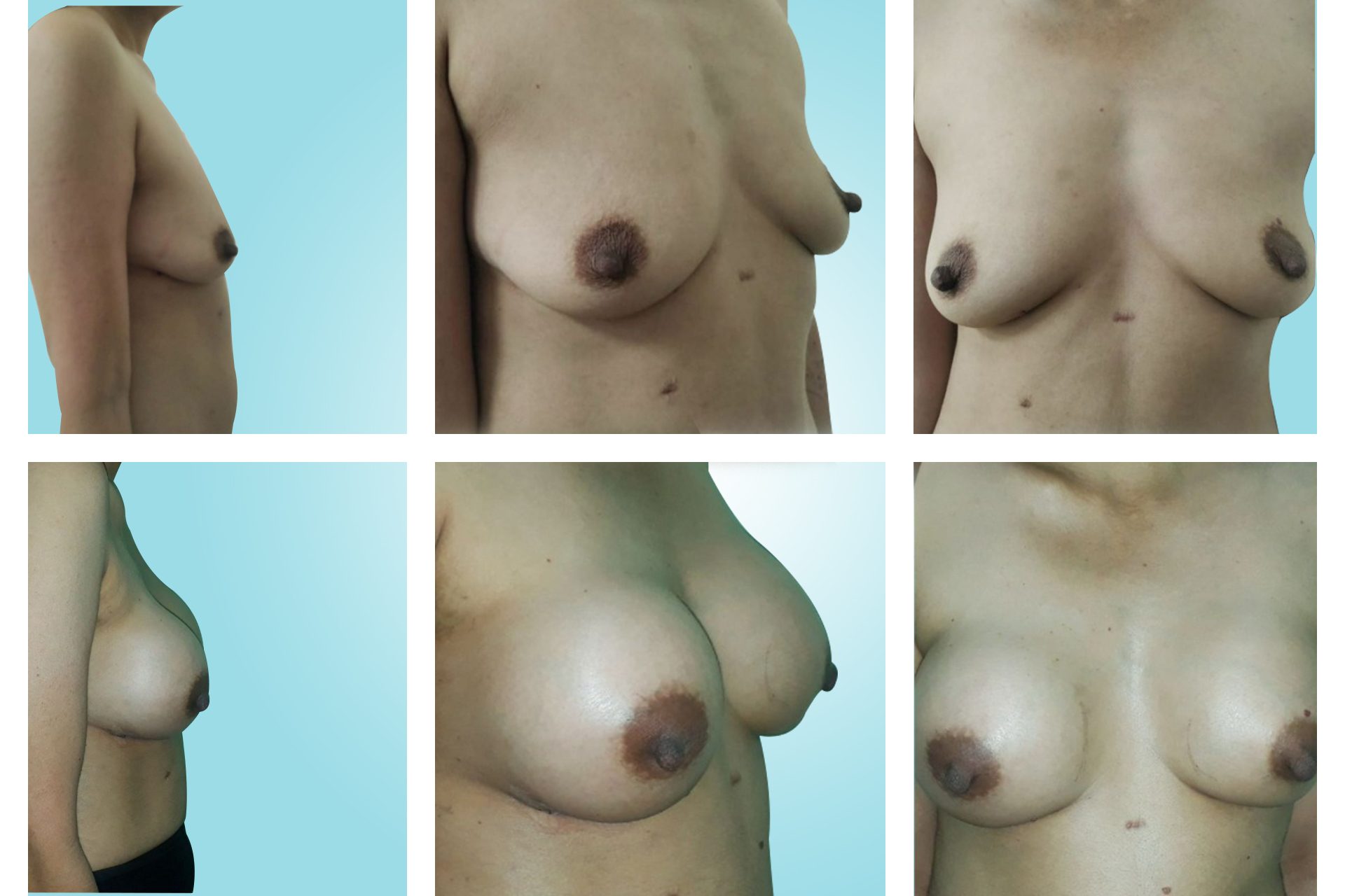 MASTOPEXY/BREAST LIFT SURGERY